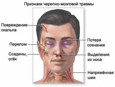 Head injury clinical syndromes and symptoms.