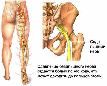 Lumbago, sciatica and lumbodynia in children and adults, a diagnosis of lumbago, sciatica and lumbalgia, diagnose, lumbago, sciatica and lumbalgia, treatment of lumbago, sciatica and lumbalgia, treat lumbago, sciatica lumbodynia and where to treat, as treated, the treatment cost, the price of diagnostic Moscow, CT MRI and CT of the spine, lumbar spine, lumbar spine, symptoms and syndromes of lumbago, sciatica and lumbalgia, drugs and medical supplies, medicines, physiotherapy, non-surgical reduction of vertebral disc herniation, the blockade at exacerbation of lumbar pain lumbago