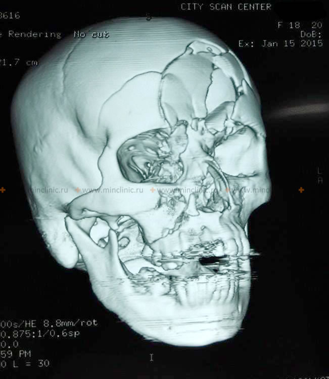 Skull CT scan revealed an impressed fracture of the frontal bone in the region of the frontal sinus with damage to the left orbit roof.