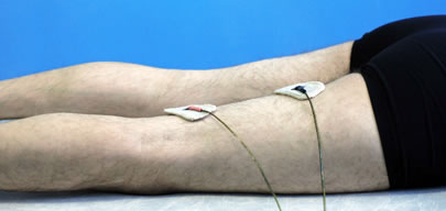 Elimination of pain, paresthesia, tingling and restoration of sensitivity in the leg in the treatment of the sciatic nerve neuritis is accelerated by the use of physiotherapy (sinusoidal modulated current (SMC) physiotherapy).