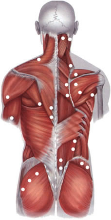 Localization of the typical pain of trigger points in fibromyalgia (muscle pain, myositis).