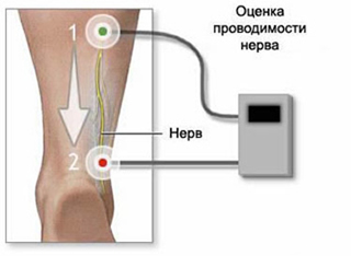 The procedure for the assessment of nerve conduction and subsequent physical therapy (physiotherapeutic procedures) is a neurostimulation and a stimulation with neuritis, polyneuritis and neuropathy.