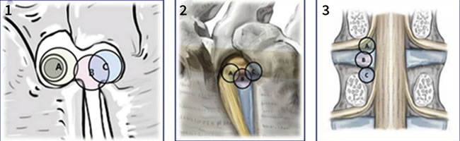 Percutaneous endoscopic transforaminal lumbar discectomy surgical routes. 1, 2 - Lateral view. 3 - Posterior view. In circle: (A) Foraminal route. (B) Intervertebral route. (C) Suprapedicular route.