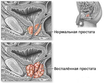 prostate adenoma, BPH, diagnosis of enlarged prostate, BPH diagnosis and treatment of BPH, to treat BPH in Moscow