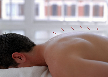 In the treatment of pain in the neck and between the shoulder blades pain, restore range of motion in the joints and muscles of the lumbar accelerated by the use of acupuncture.