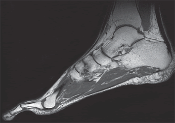 MRI of the foot at the heel spur during plantar fasciitis.