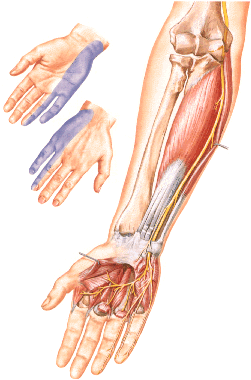 The ulnar nerve and areas of sensory disorders in its disease on the hand.