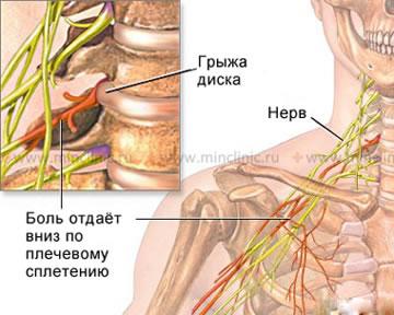 Болит шея при повороте головы причины что делать как лечить