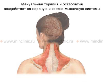 Soft muscle techniques of manual therapy relieve spasm of the neck muscles (fibromyalgia) and eliminate the headache.