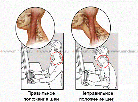 Prolonged overstrain of muscles of the cervical spine contributes to the emergence headaches and neck pain.